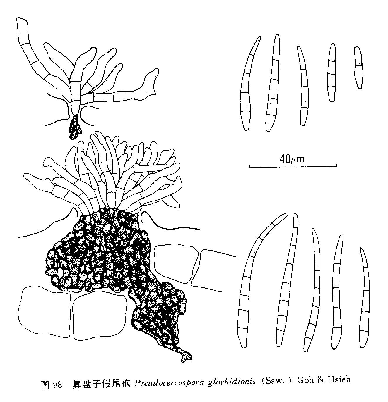 算盘子假尾孢